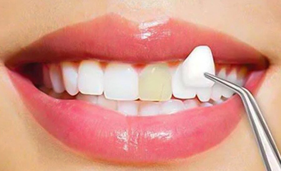 porcelain veeners cosmetic dentistry procedures