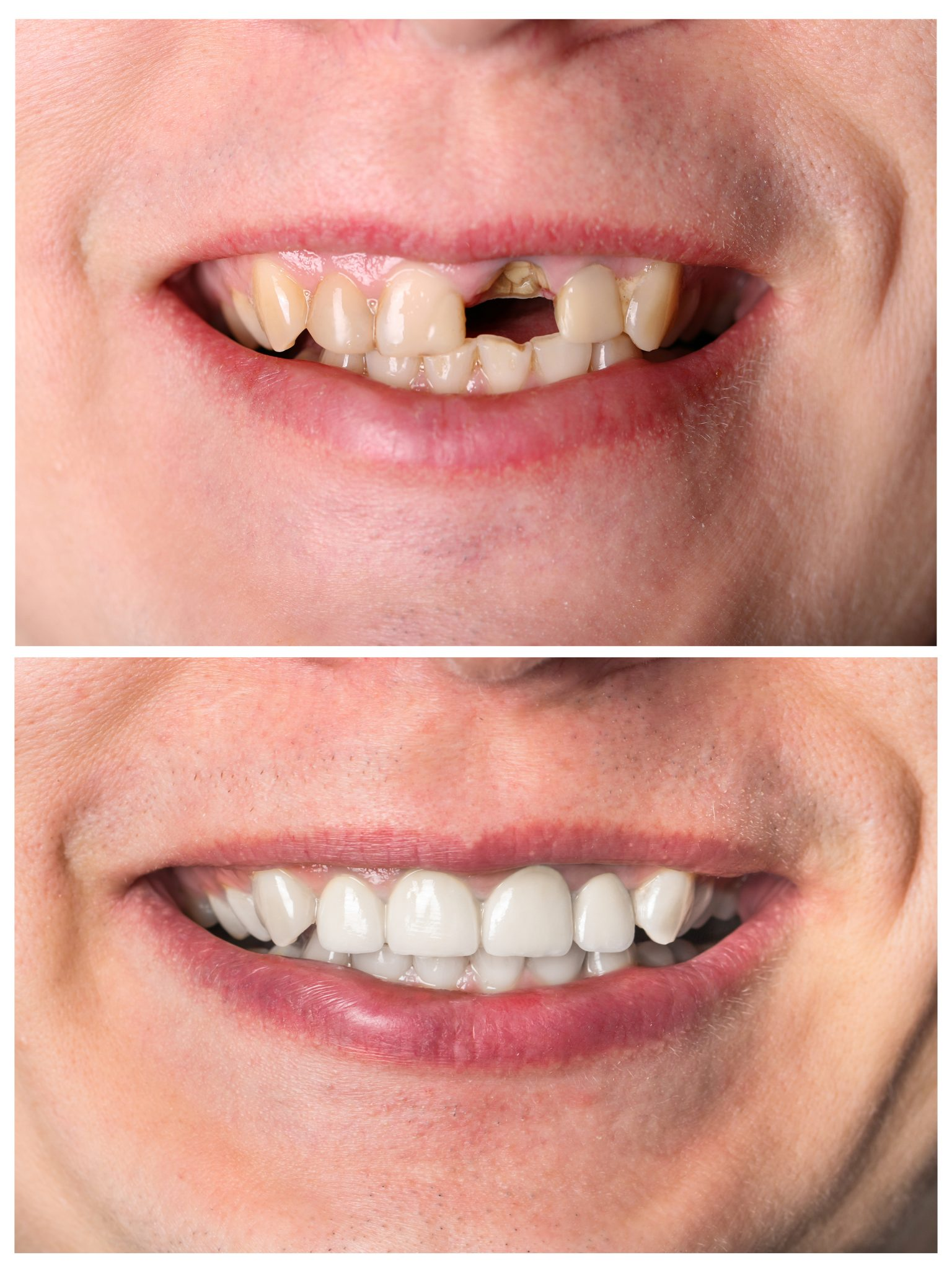 Tooth Restoration Murfreesboro TN
