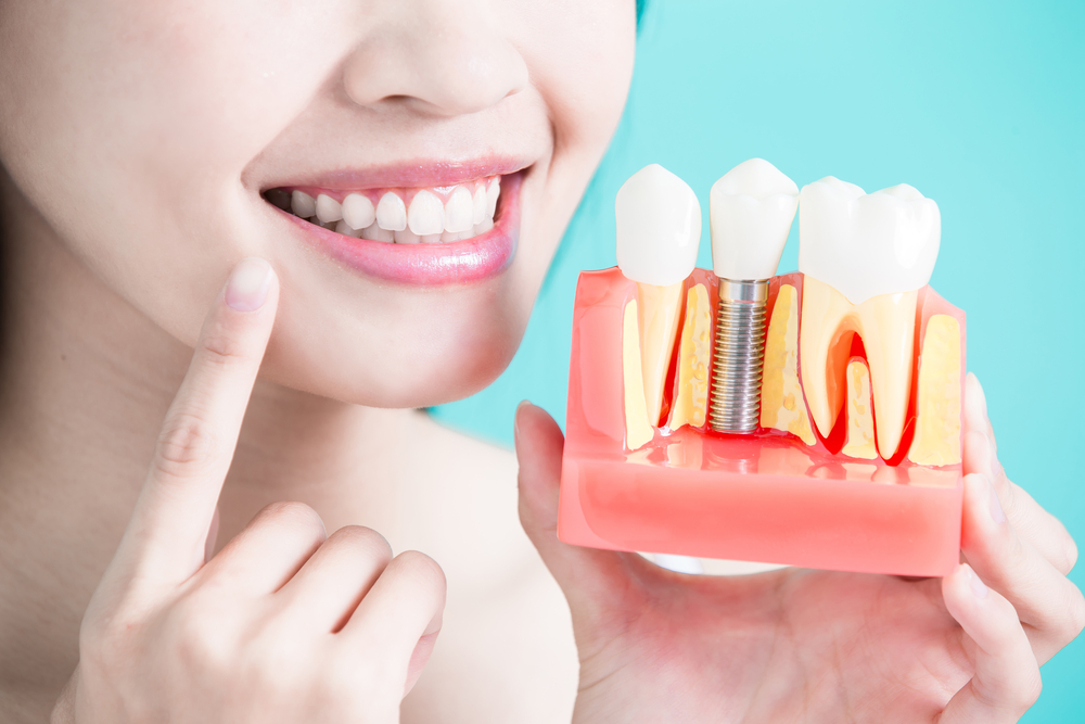 Dental Implants Helps to Restore Your Smile