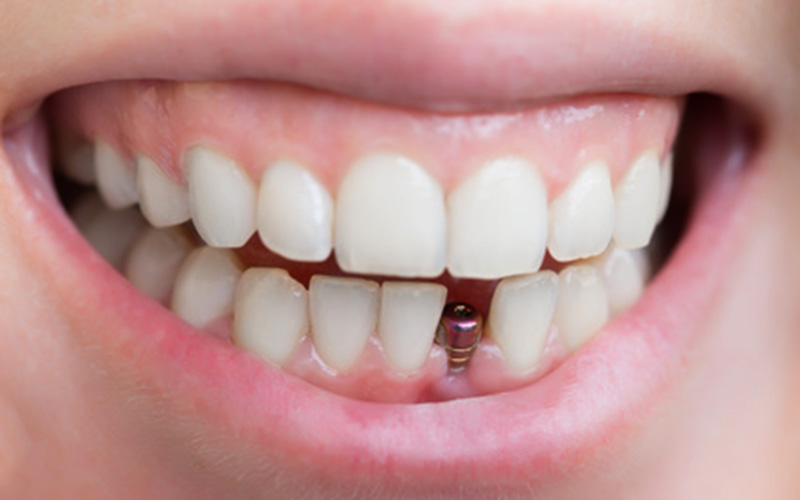 Dental Implants for Single Tooth