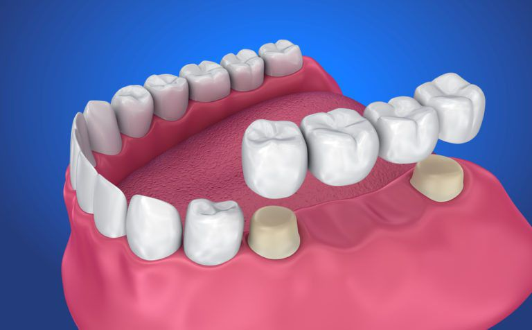 Dental Crowns and Fixed Bridges