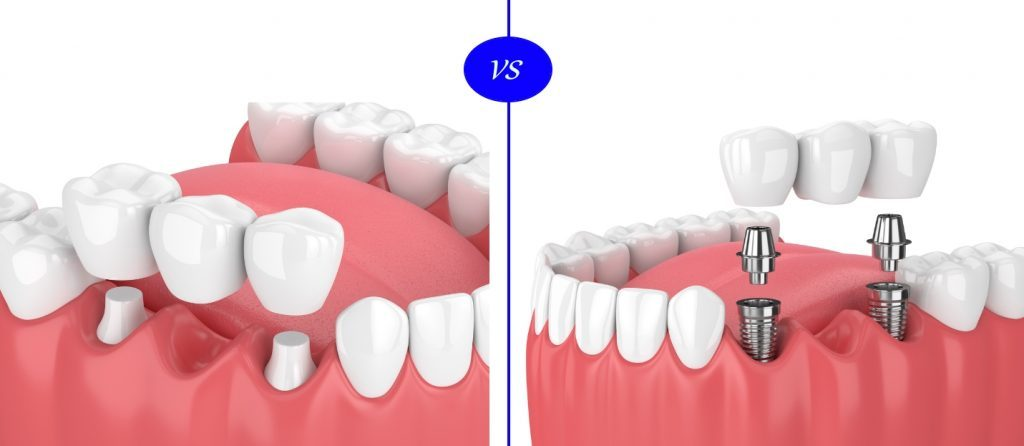 dental implant vs fixed bridge