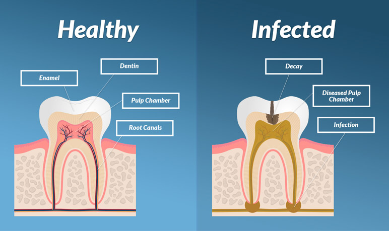 Infected Pulp Inside Tooth